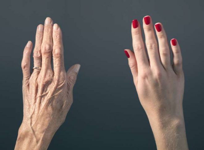 Tay lão hóa già trước tuổi