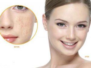 Cách trị nám da từ 3 loại bột quen thuộc