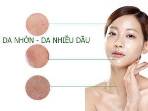 Chăm sóc da dầu bị mụn hiệu quả ngay tại nhà
