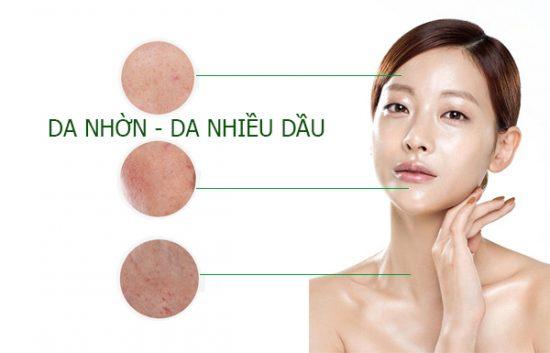 Chăm sóc da dầu bị mụn hiệu quả