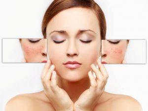Mặt nạ trị nám da đơn giản hiệu quả ngay tại nhà