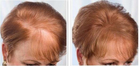Bí quyết cho tóc mọc nhanh hơn bạn nên biết