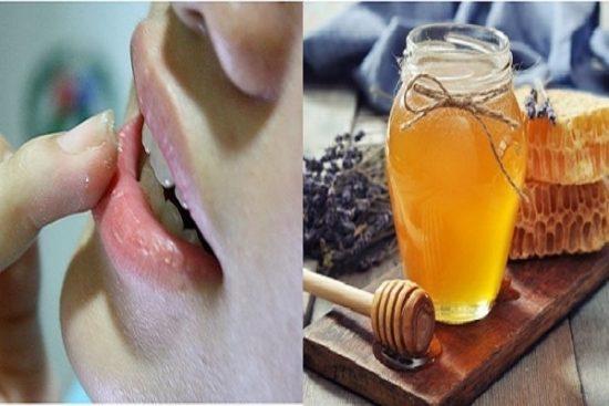 Dùng mật ong nguyên chất thoa lên môi