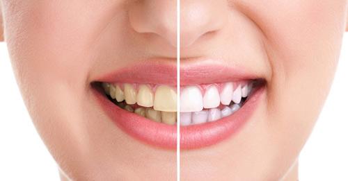 Thực phẩm giúp cải thiện răng bị ố vàng