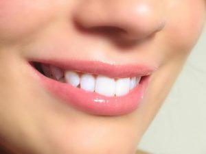 Bí quyết  làm trắng răng tại nhà với nguyên liệu đơn giản