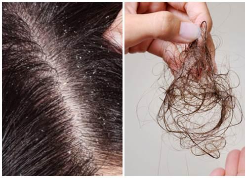Hậu quả của gàu và rụng tóc