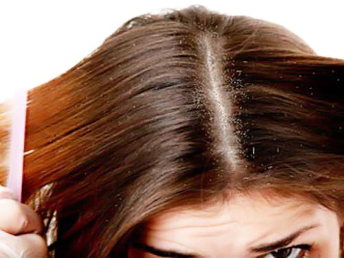 Mặt nạ trị gàu cho mái tóc dầu từ thiên nhiên