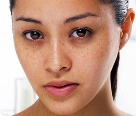 Trị nám da bằng nha đam hiệu quả ngay tại nhà